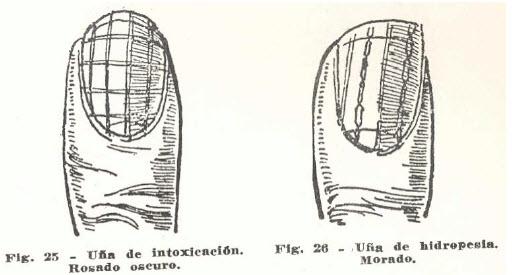 10-una-hidropesia