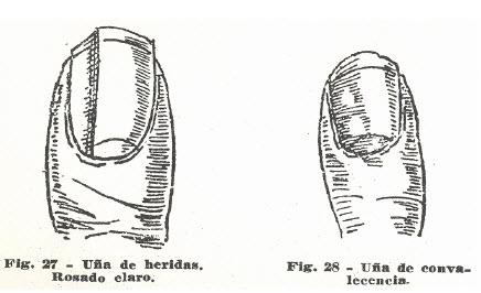 11-una-heridas