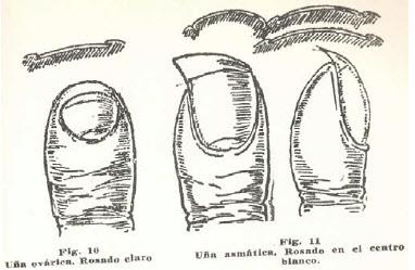 2-una-ovarica