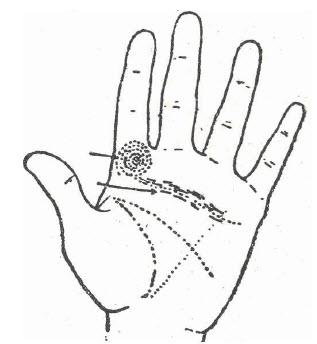 43-arteroscleriosis