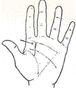 45-atrofia-pulmonar