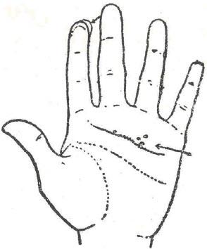 46-calculos-biliares