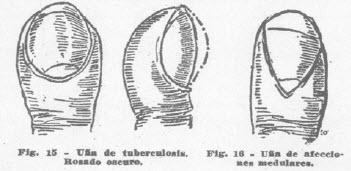 5-una-tuberculosis