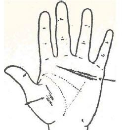 51-dilatacion-cardiaca