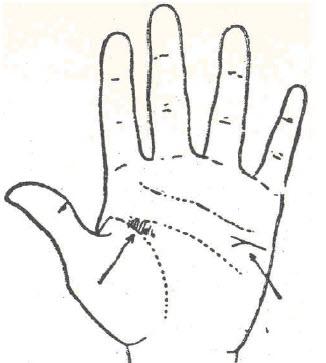 54-faringitis