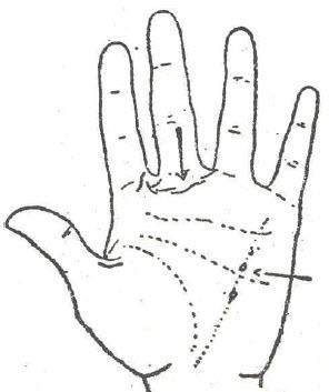 55-fiebre-puerperal