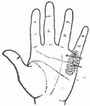 57-lesiones-del-brazo