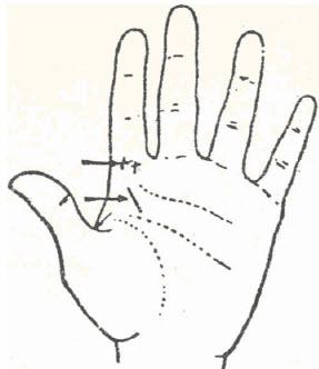 58-leucorrea