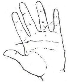 60-pericarditis