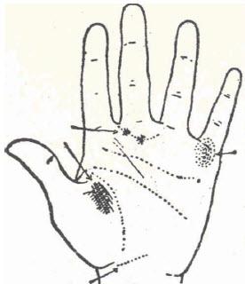 62-sifils