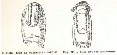 8-una-catarro