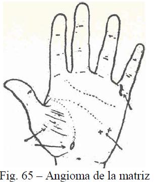 f65-angioma-matriz