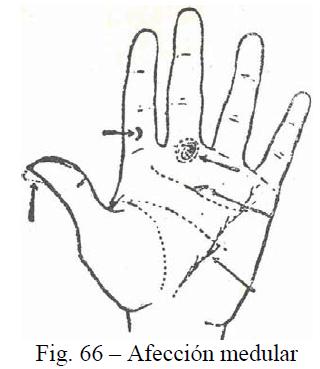f66-afeccion-medular