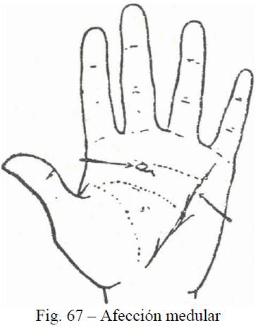 f67-afeccion-medular