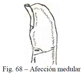 f68-afeccion-medular