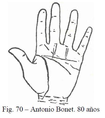 f70-antonio-bonet